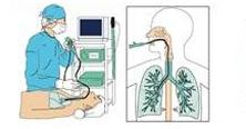 気管支内視鏡検査