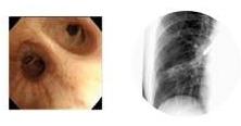 左:気管支内視鏡の画像、右:透視下気管支鏡