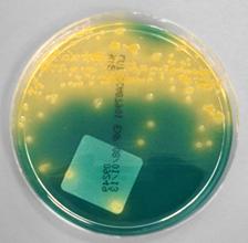 BTB培地に形成した大腸菌のコロニー(菌の塊)